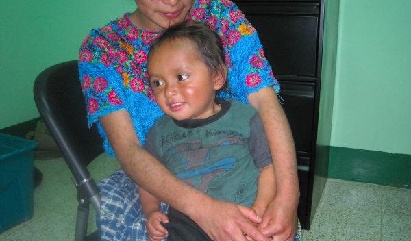 Photo of Elias post-operation