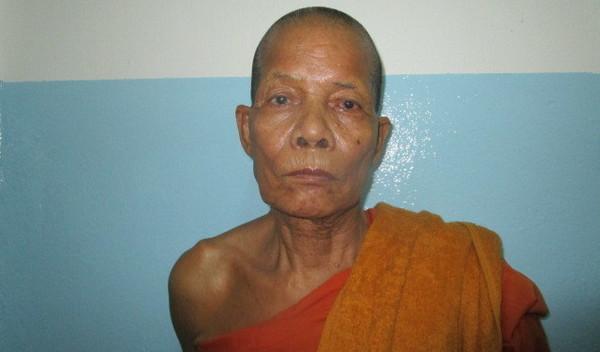 Photo of Loeun post-operation