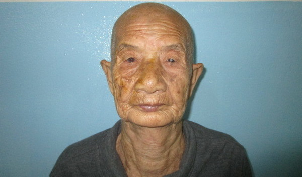 Photo of Phay post-operation