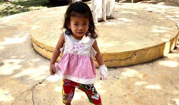 Photo of Solita post-operation