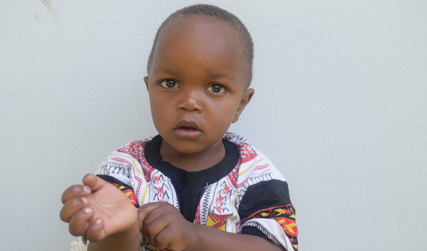 Photo of Ombeni post-operation