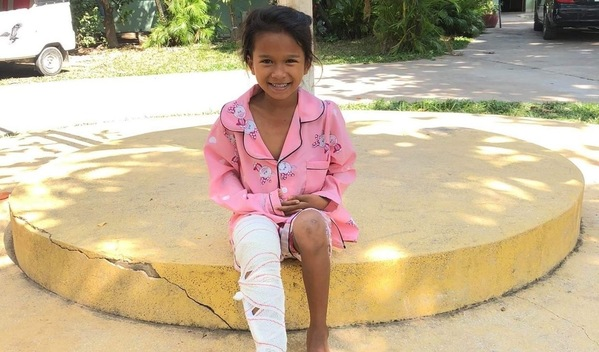 Photo of Anam post-operation