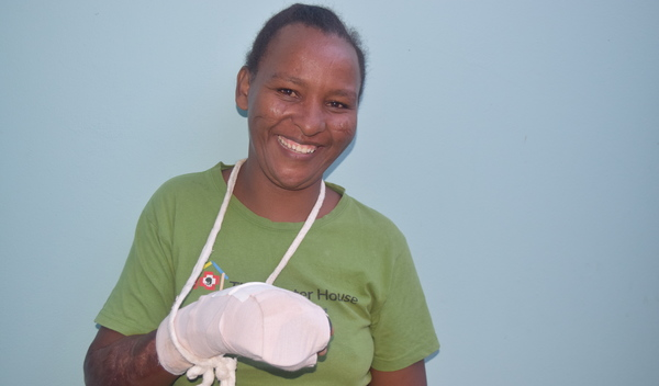 Photo of Pascalina post-operation
