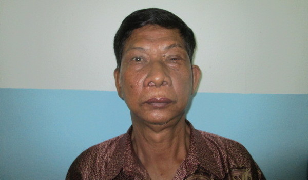 Photo of Seng Ly post-operation