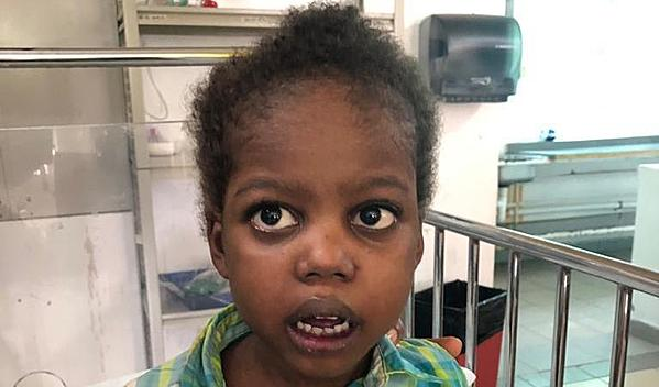 Photo of Marvens post-operation