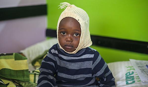Photo of Amos post-operation