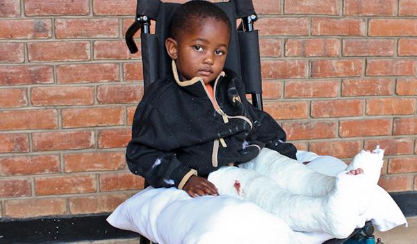 Photo of Mandela post-operation