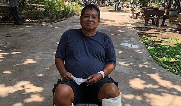 Photo of Sambon post-operation