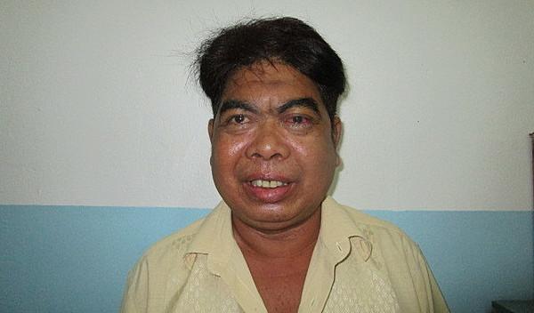 Photo of Man post-operation