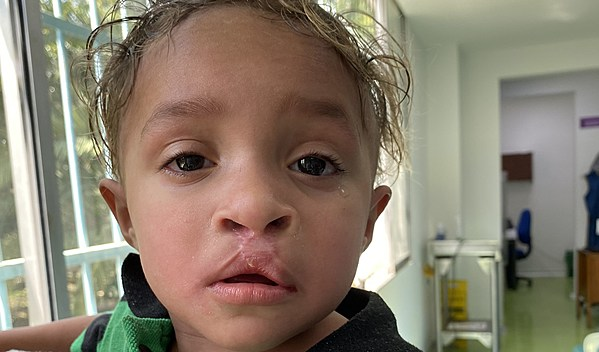 Photo of Miguelangel post-operation