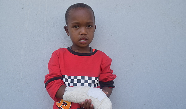 Photo of Jonathan post-operation