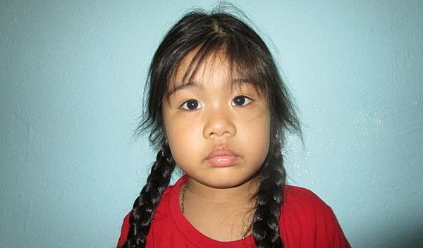 Photo of Lisa post-operation