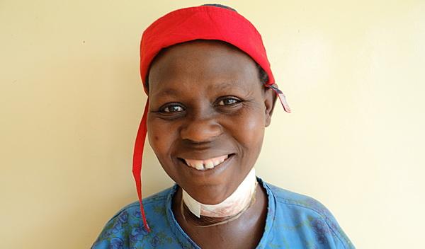 Photo of Gladys post-operation