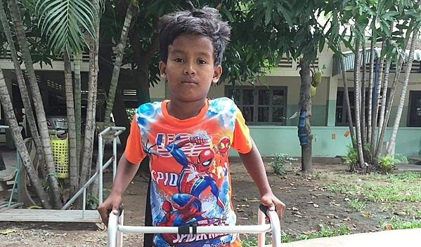 Photo of David post-operation