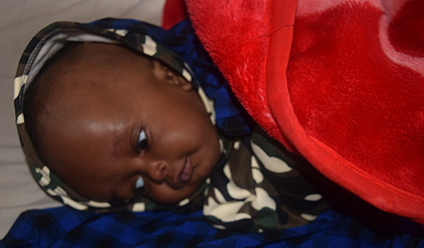 Photo of Yohana post-operation