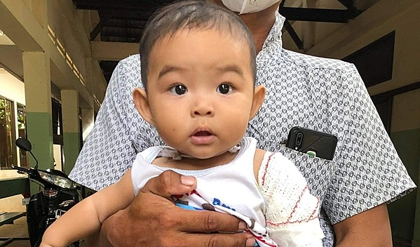 Photo of Sophanha post-operation