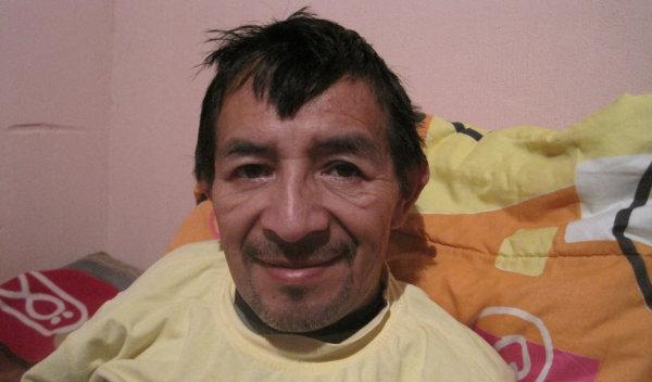Photo of Julio post-operation