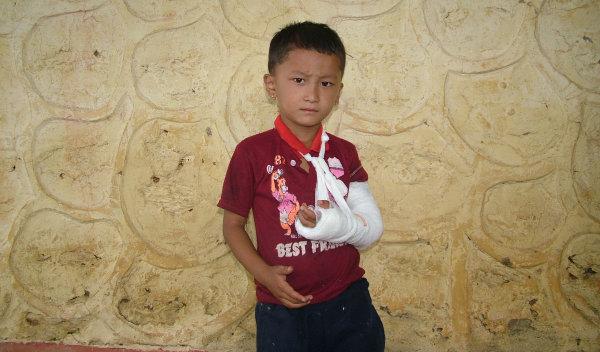 Photo of Dhiraj post-operation